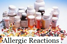 Allergic Reactions As A Result Of Medical Malpractice