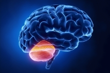 Cerebellum Brain Injury