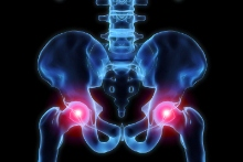 DePuy hip replacement recall FAQs: Essential answers